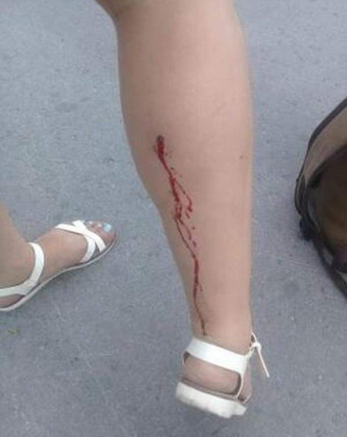 Костанайский стрелок: На городском пляже неизвестный выстрелил в ногу девушке
