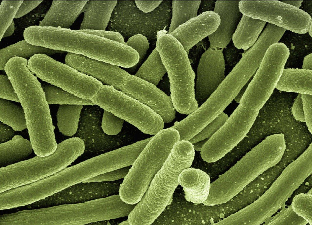 Челябинские ученые нашли в казахстанской продукции опасные бактерии