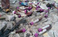 Почему в Казахстане до сих пор выбрасывают пробирки с кровью в степи